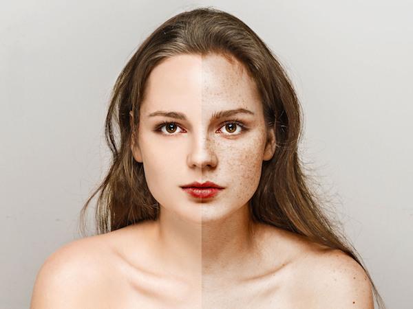 肌が汚い花嫁と言われたくない!シミ取り治療におすすめはコチラ (Unicode エンコードの競合)